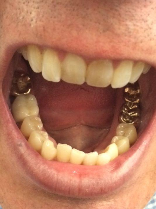 ashes gold dental